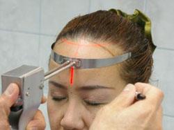 [Haarlijn Laser hulpmiddel bij Prohairclinic in Wilrijk]